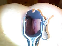 First attemp anal speculum deep asshole tube porn video
